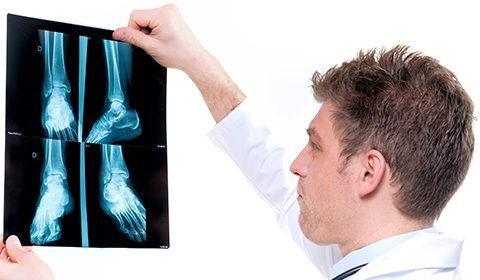 Consulenze per Menopausa e Osteoporosi